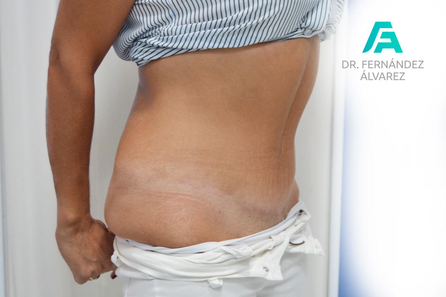 abdominoplastias-2-2