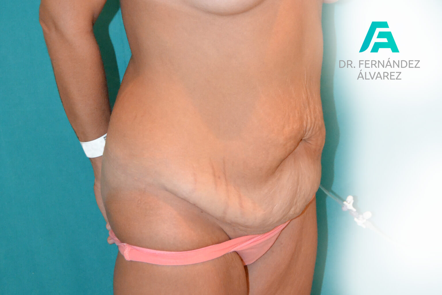 abdominoplastias-2