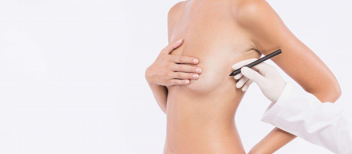 cirugia-mamaria-jerez-sevilla